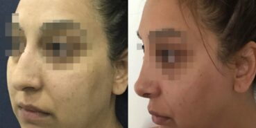 rhinoplasty colombia 342-4 (1)-min