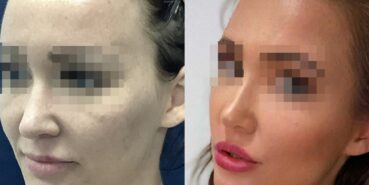 rhinoplasty colombia 370-3-min