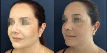 rhinoplasty colombia 827 - 2
