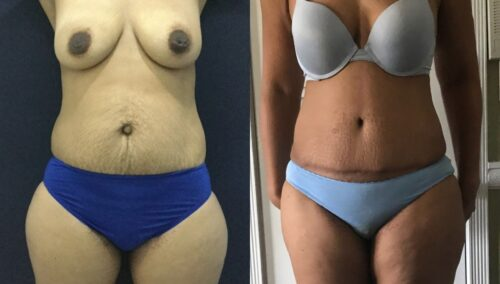 tummy tuck colombia 101-1-min