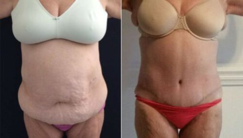 tummy tuck colombia 221-1-min