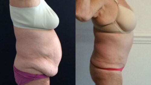 tummy tuck colombia 221-3-min