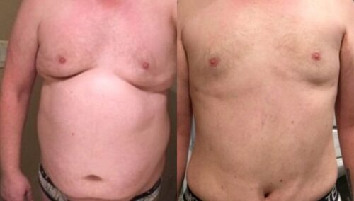 tummy tuck colombia 222-1-min