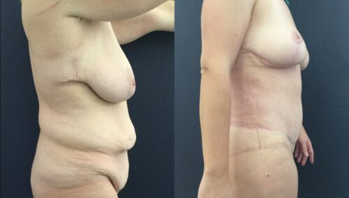 tummy tuck colombia 226-5-min