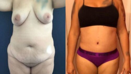 tummy tuck colombia 243-1-min