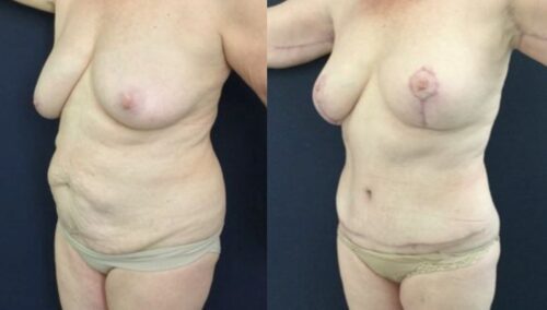 tummy tuck colombia 246-2-min