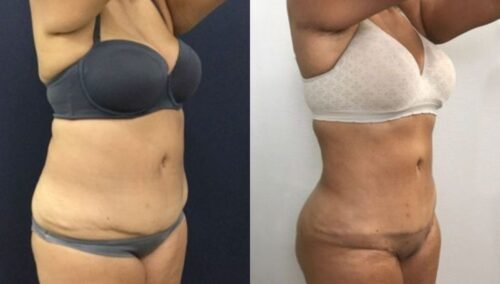 tummy tuck colombia 248-4-min