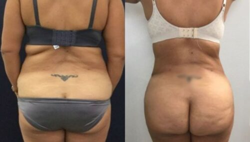 tummy tuck colombia 248-6-min
