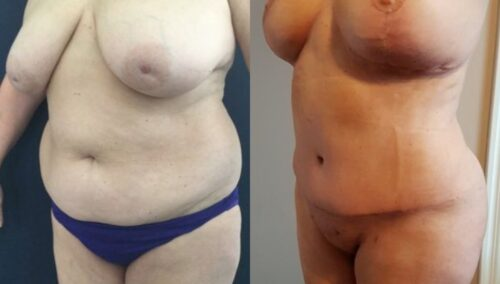tummy tuck colombia 252-2-min