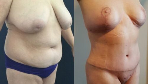 tummy tuck colombia 252-3-min