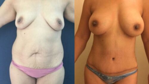 tummy tuck colombia 254-1-min