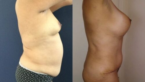 tummy tuck colombia 261-5-min