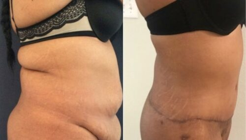 tummy tuck colombia 263-3-min