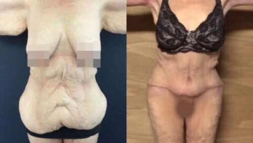 tummy tuck colombia 264-1-min