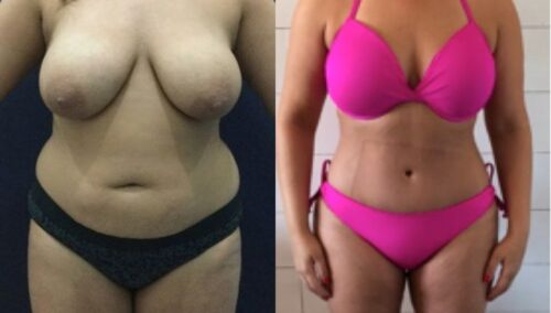 tummy tuck colombia 271-1-min