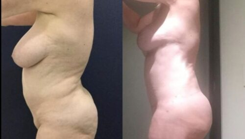 tummy tuck colombia 282-2-min