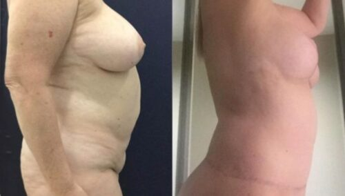 tummy tuck colombia 282-3-min