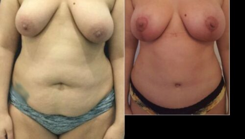 tummy tuck colombia 288-1-min