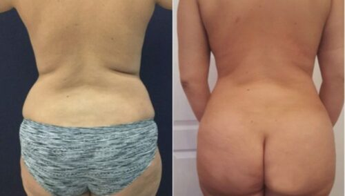 tummy tuck colombia 288-6-min