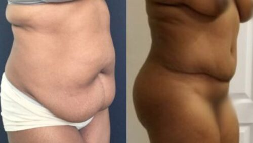 tummy tuck colombia 289-31-min