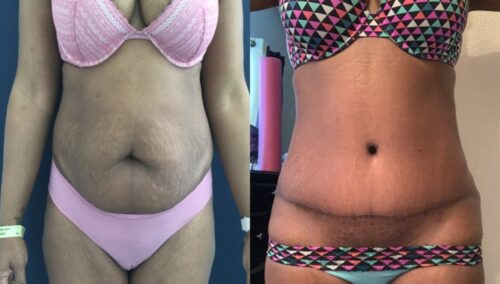 tummy tuck colombia 290-1-min
