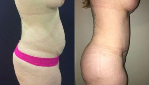 tummy tuck colombia 297-3 (1)-min