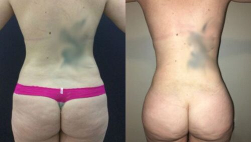 tummy tuck colombia 297-4-min