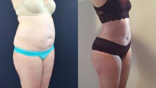 tummy tuck colombia 303-4-min