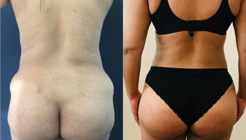 tummy tuck colombia 318-4-min
