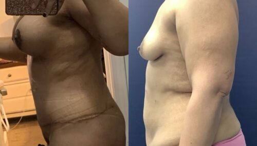 tummy tuck colombia 360-3-min