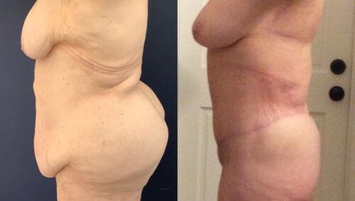 tummy tuck colombia 368-2-min