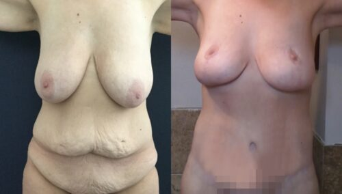 tummy tuck colombia 389-1-min