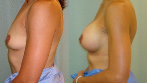 breast-augmentation-paciente-2-3-1024x737