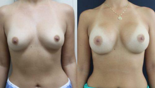 breast-augmentation-paciente-3-1-1024x629