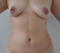 before and after tummy tuck in colombia