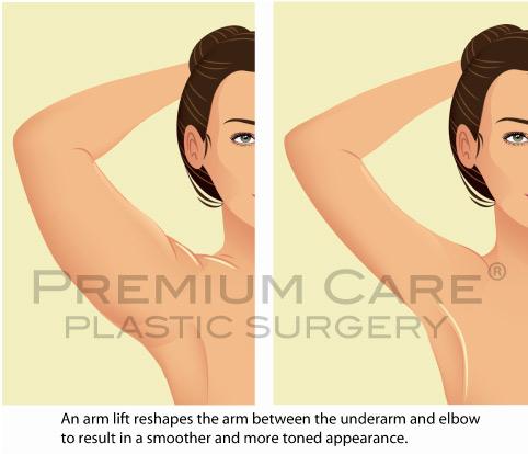 Arm lift Colombia - Premium Care Plastic Surgery