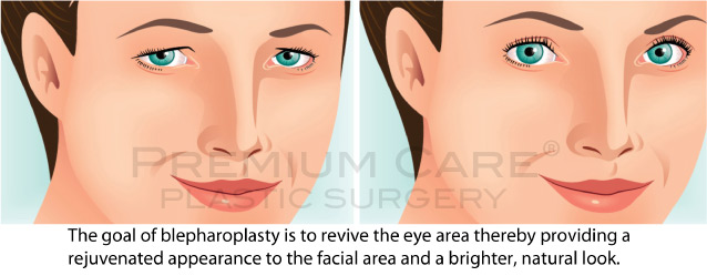 Eyelid Surgery in Colombia
