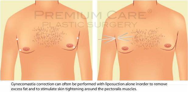 Male breast reduction Colombia - Premium Care Plastic Surgery
