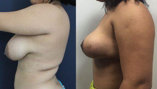 Breast Lift Cartagena Colombia - Premium Care Plastic Surgery
