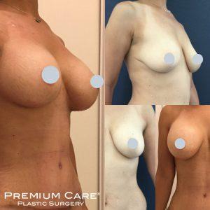 Breast Surgery in Colombia - Premium Care Plastic Surgery