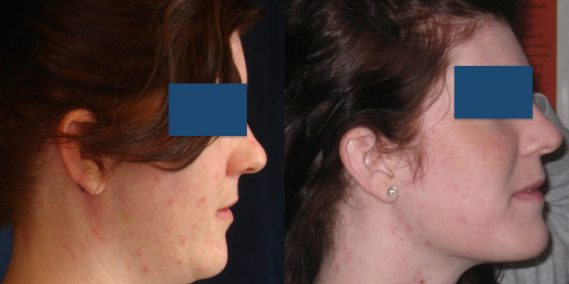 Before and After Buccal Fat Removal Colombia - Premium Care Plastic Surgery