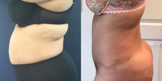 Before and after Mommy Makeover Colombia - Premium Care Plastic Surgery