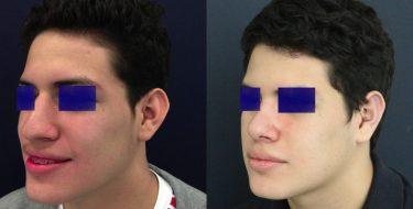 Ear Surgery Colombia - Premium Care Plastic Surgery