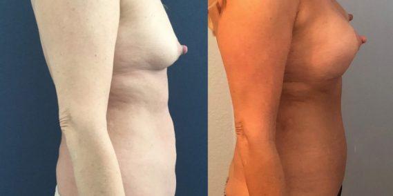 Breast Augmentation Colombia - Premium Care Plastic Surgery