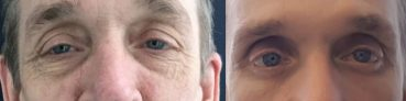 before and after Eyelid Surgery Colombia - Premium Care Plastic Surgery