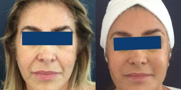 Before and After Facelift Colombia - Premium Care Plastic Surgery