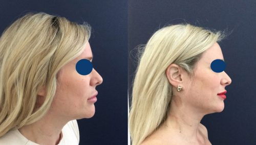 Before and after Facial Fat Grafting Colombia - Premium Care Plastic SurgeryFacial Fat Grafting Cartagena Colombia - Premium Care Plastic Surgery
