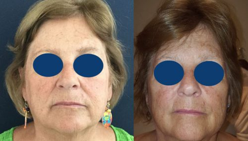 Before and after Facial Fat Grafting Colombia - Premium Care Plastic Surgery