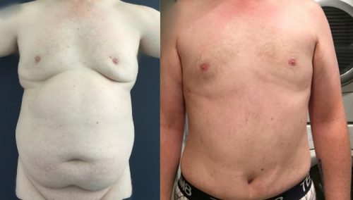 Before and After Male Breast Reduction Colombia - Premium Care Plastic Surgery