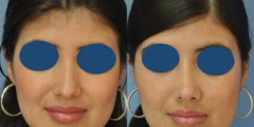 Before and After - Rhinoplasty Colombia - Premium Care Plastic SurgeryRhinoplasty Cartagena Colombia - Premium Care Plastic Surgery
